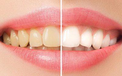 """Associação de Ética e Odontologia Legal contesta resolução que permite """"Antes e Depois"""""""